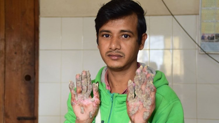 Bajandar muetsra su manos, con las verrugas en pleno crecimiento (AFP)