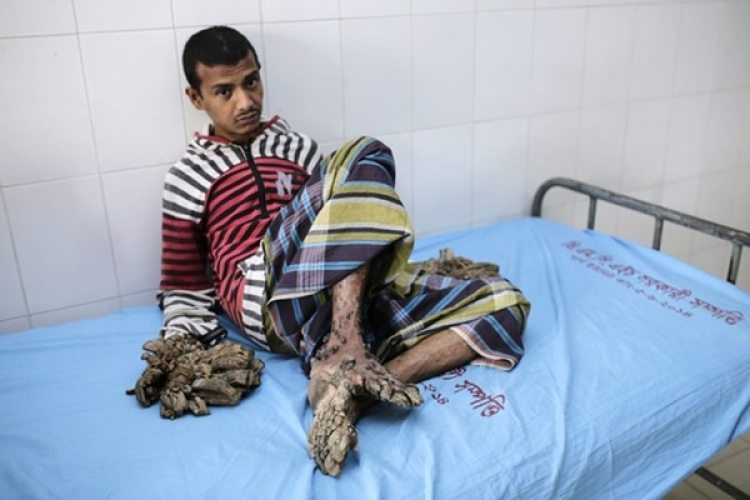Abul Bajandar antes de las cirugías. (EFE)