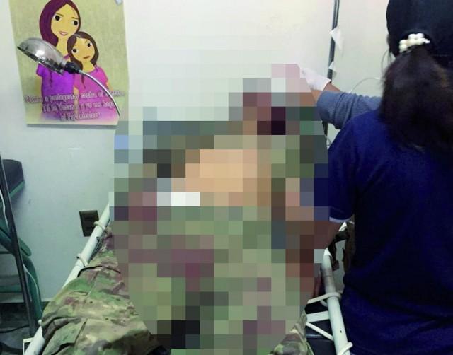 Contrabandistas asesinan a dos militares en una brutal emboscada