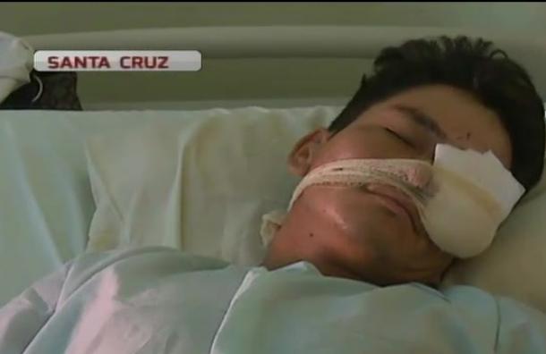 Joven fue golpeado con una botella durante asalto