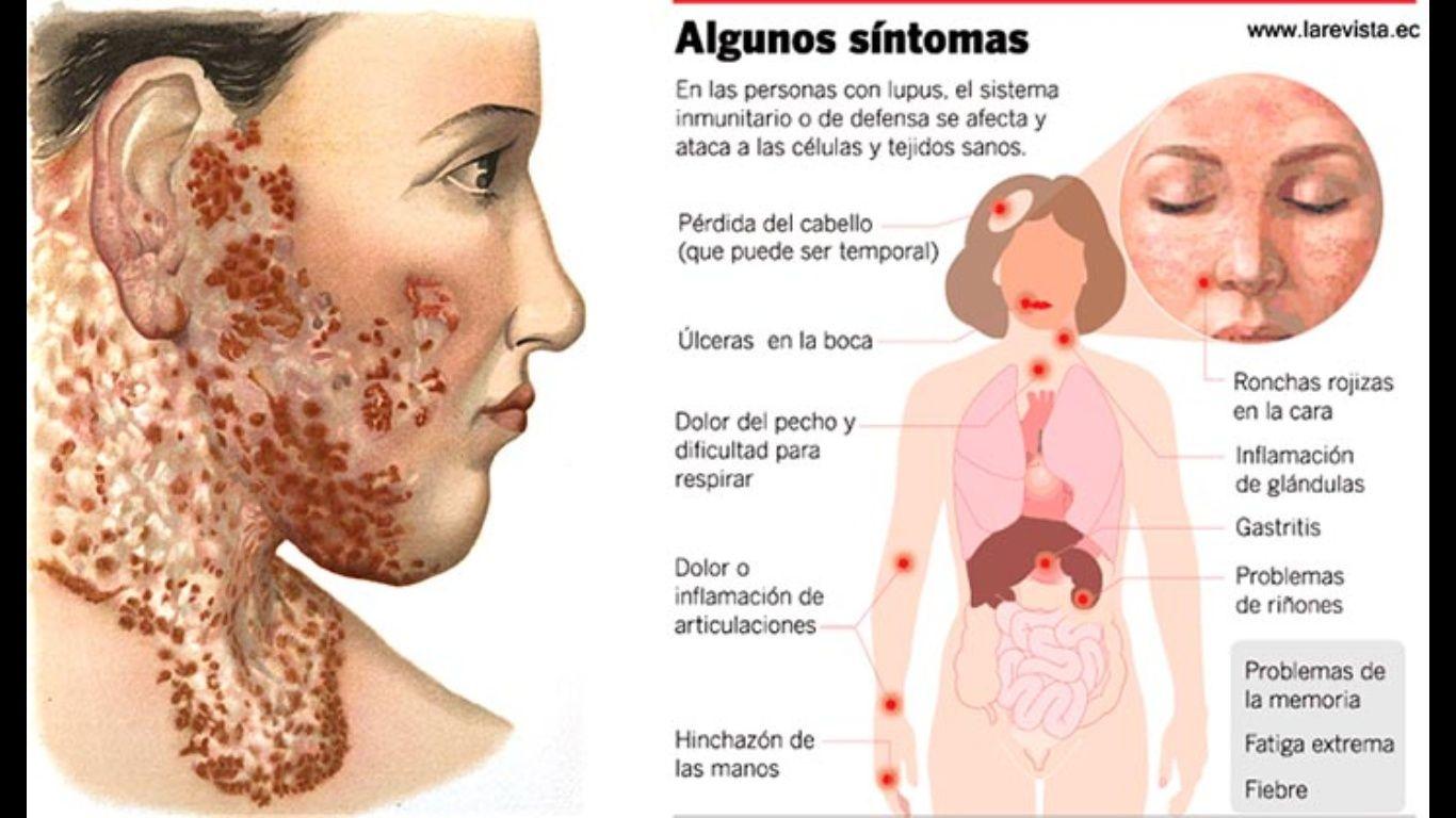 Buscan crear conciencia en el Día Internacional del Lupus