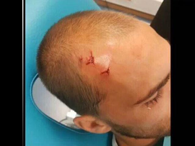 Resultado de imagen para Â¡Pseudoaficionados invadieron entrenamiento del Sporting de Portugal y lesionaron a un jugador!