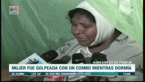 Mujer que recibió tres 'combazos' en la cabeza por su pareja, precisa ayuda