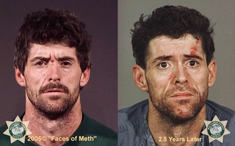Los efectos del abuso de metanfetaminas en sólo dos años y medio