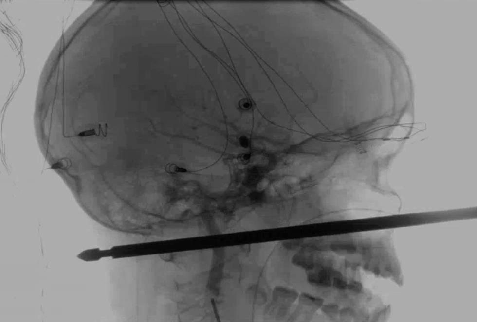 Radiografía de la cabeza de Xavier Cunningham con la broqueta atravesada.