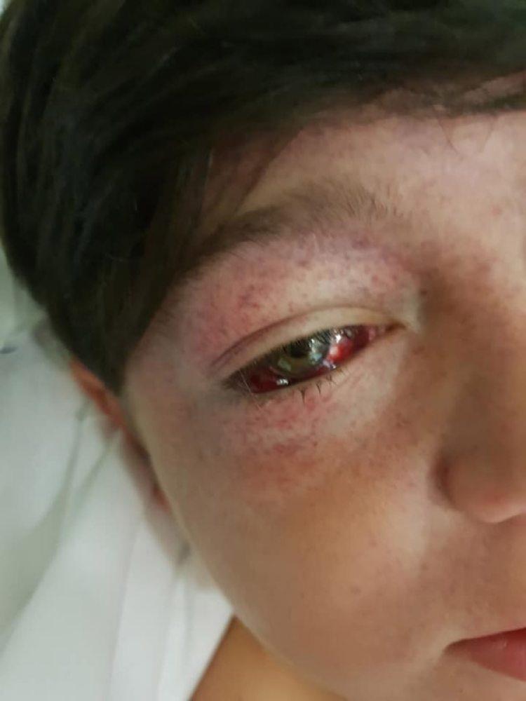 Sufrió heridas graves en la cabeza