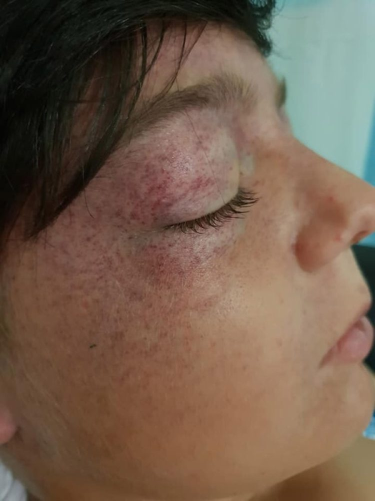 Las heridas son producto de la fuerza gravitacional