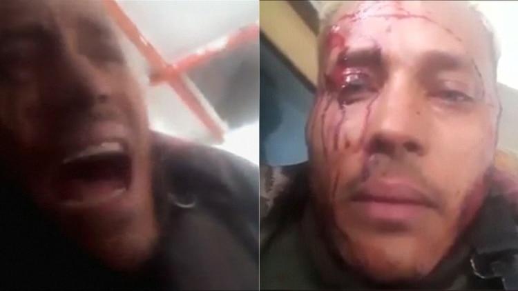 Fotos comprueban que Óscar Pérez fue ejecutado tras sublevación contra Maduro