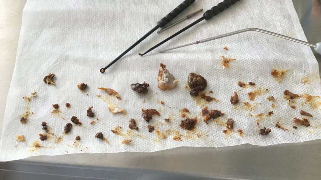 clumps-of-man's-earwax-removed-after-16-years-of-buildup