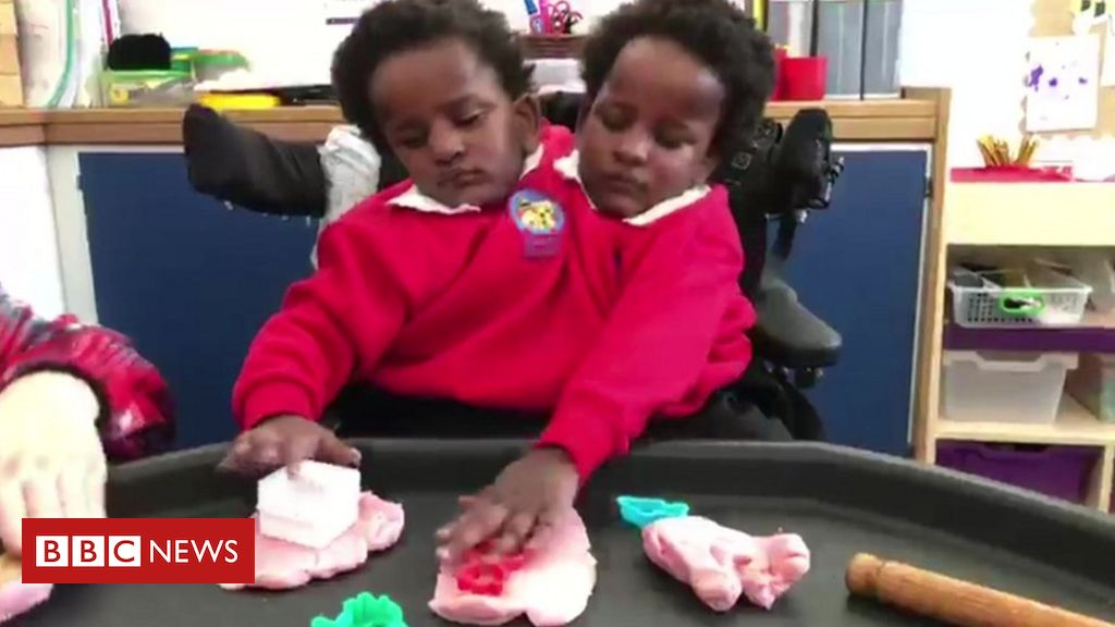 Conjoined twins Marieme and Ndeye settling at Cardiff school
