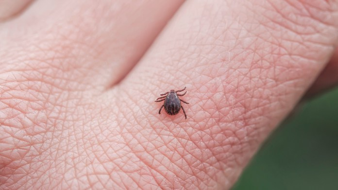 Tick bite lands boy in ICU with Rocky Mountain spotted fever diagnosis, mom says