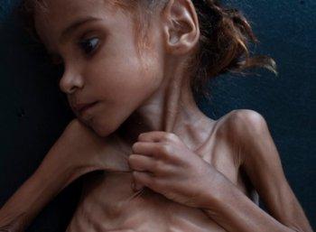 - L'impérialisme, stade suprême de la famine...