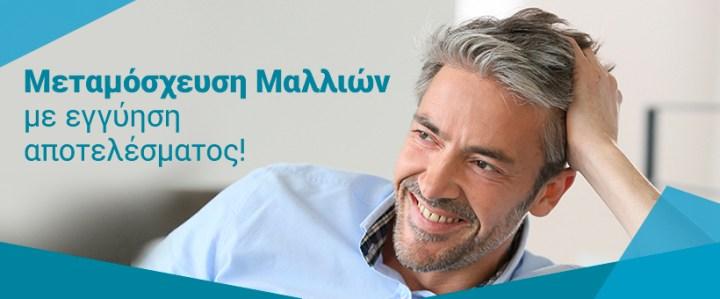 Μεταμόσχευση μαλλιών με Hairtransplant