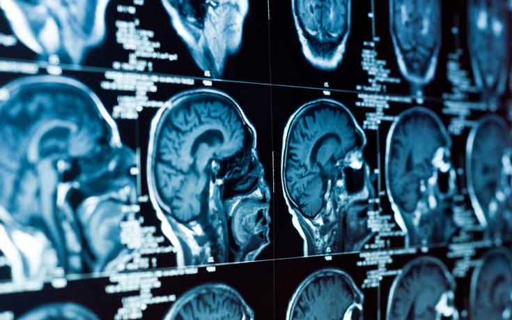 Να τι κάνει η παχυσαρκία στον ανθρώπινο εγκέφαλο