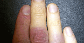 Vita fingrar vid kyla – orsaker och sjukdomar?