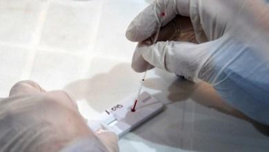 Photo of Coronavirus: estos son los síntomas que se tienen en cuenta en Argentina