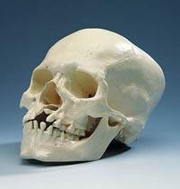 Deformed_human_skull_1