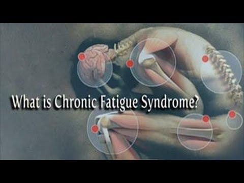 Oboseala cronică.Vezi simptomele.VIDEO 1