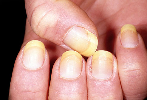 Aspectul unghiilor-Unghii galbene