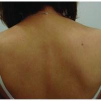 Femeie vindecată de psoriazis cu 4 suplimente și dietă