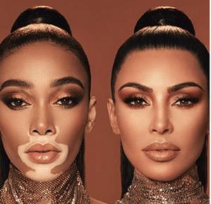 Colaborarea dintre Winnie Harlow-vitiligo și Kim Kardashian-psoriazis
