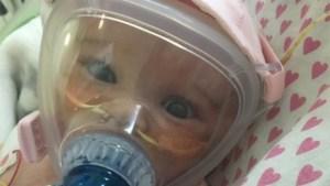 A învins COVID-19 la vârsta de 6 luni, după o operație la inimă și un virus care i-a distrus plămânii
