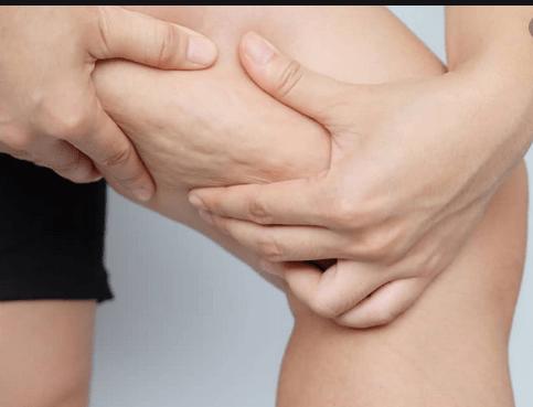 Celulita poate fi vindecată prin Echilibrare Nutrițională 3