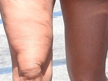 Celulita poate fi vindecată prin Echilibrare Nutrițională 6