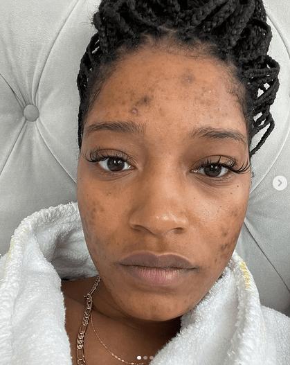 Actrița Keke Palmer, 27 ani, despre sindromul ovarelor polichistice 4