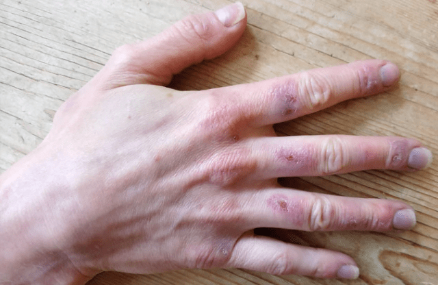 Simptomul numit Degetul COVID. Apare la tineri și poate dura câteva luni 3