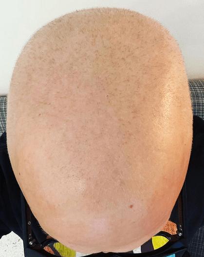 Mark Hoppus nu mai are cancer