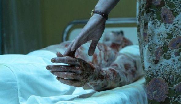 Una de las víctimas de la radiación en la serie 'Chernobyl'.