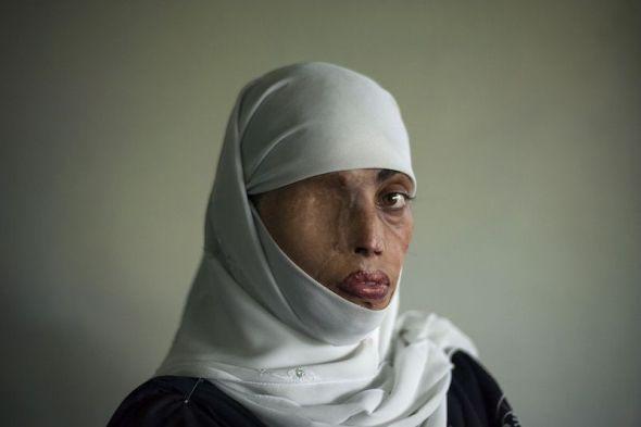 Esta mujer se llama Busha Shari y fue atacada con ácido por su marido en Islamabad, Pakistán.