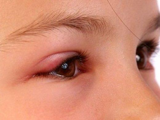 ٤ علاجات منزلية للتخلص من شعيرة العين