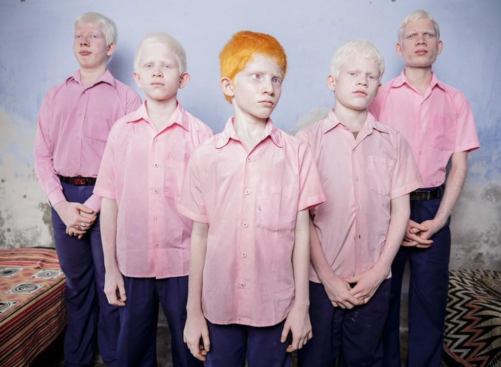 niños albinos en india