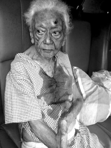 abuela-atacada