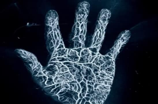 Photoacoustic image of hand