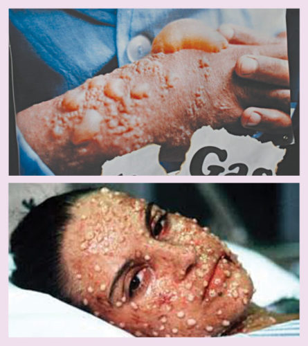 Effects of chemical weapon attack
