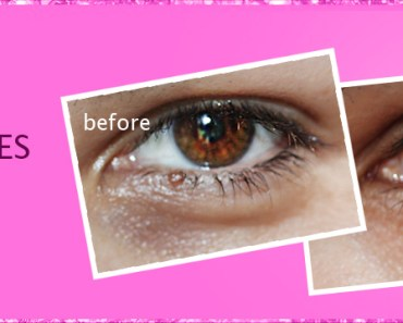 how to get rid of dark under eye circles fast naturally