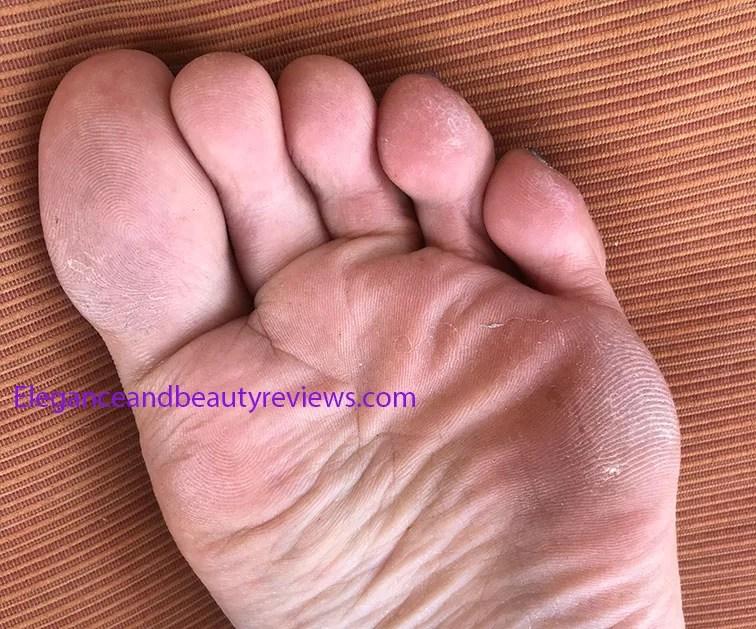 callus on feet