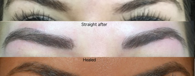 before and after phi brows