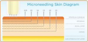 Micro Needling (DermaRolling): Effective or Dangerous?