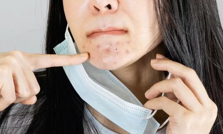 ¡No pierdas tu belleza! 5 consejos para evitar el acné que causa la mascarilla