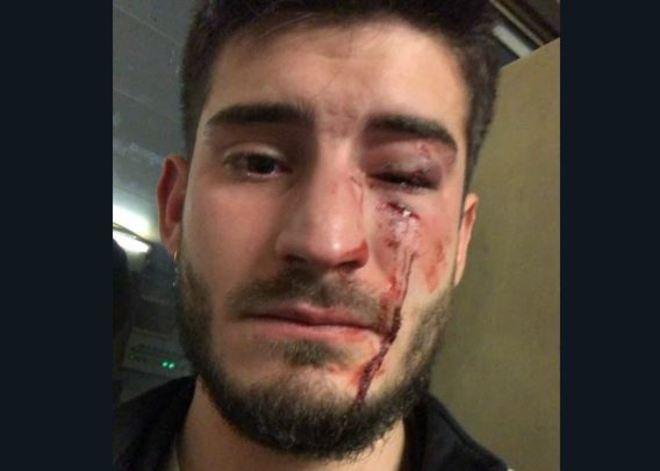 Dos detenidos por presunto ataque homófobo en Barcelona