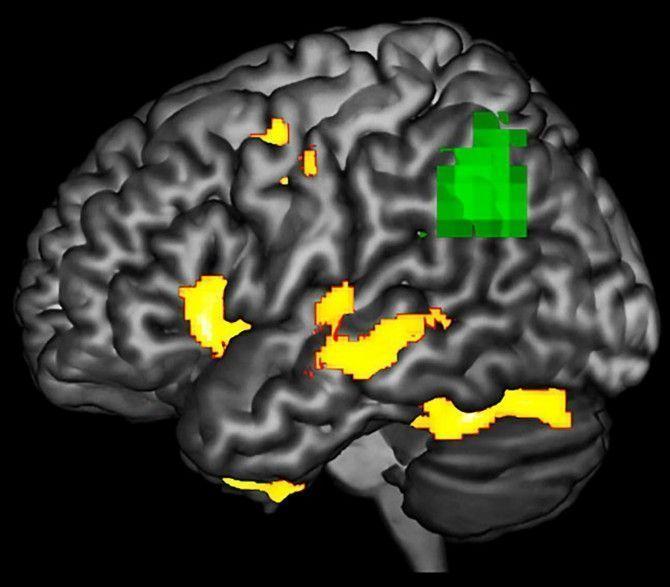 Detectar los efectos dañinos de la demencia antes de que sea demasiado tarde.
