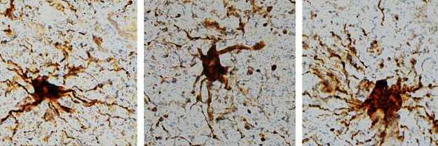 Genes que se vuelven más activos tras la muerte y células que crecen mucho en el difunto