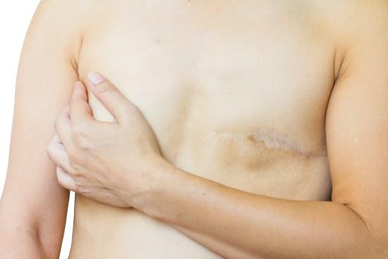 Bröstcancerpatient copyright: Dreamstime.com