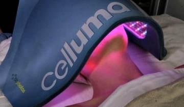 celluma-acne