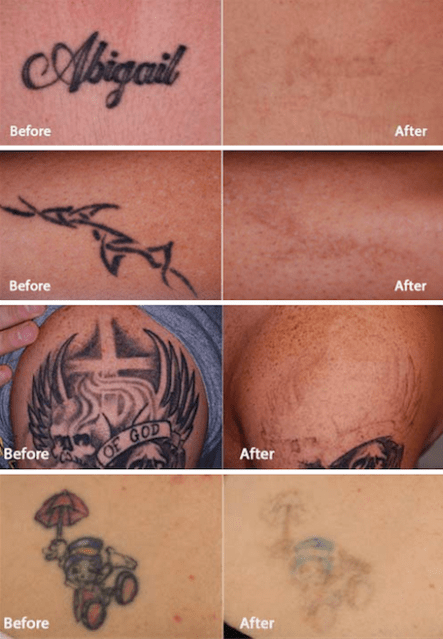 laser tattoo removal colleyville