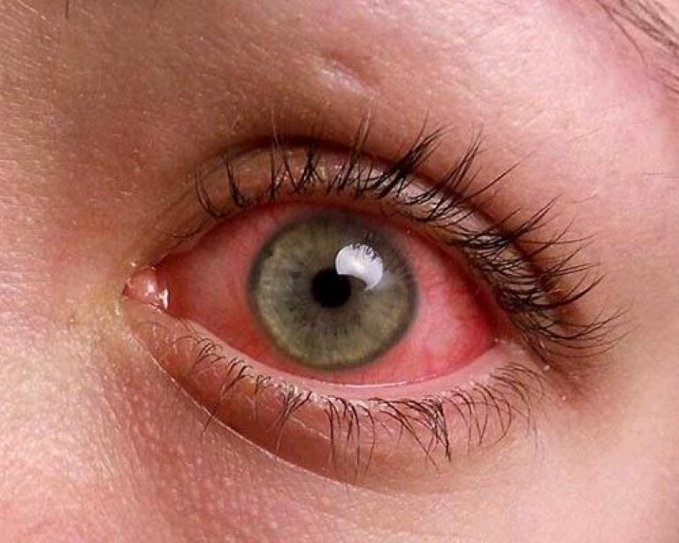 Symptoms and causes of conjunctivitis